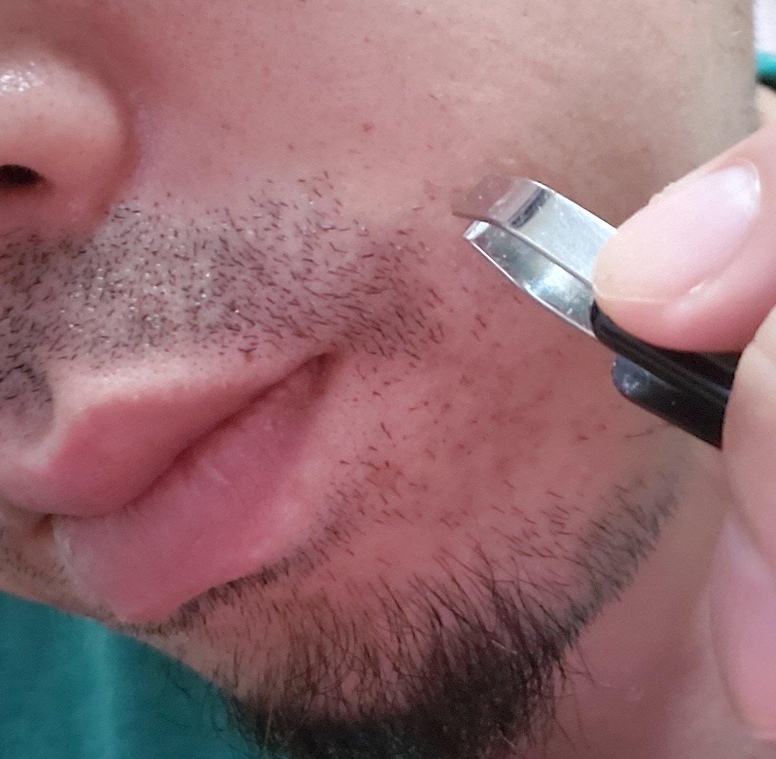 髭を抜くとニキビができやすい