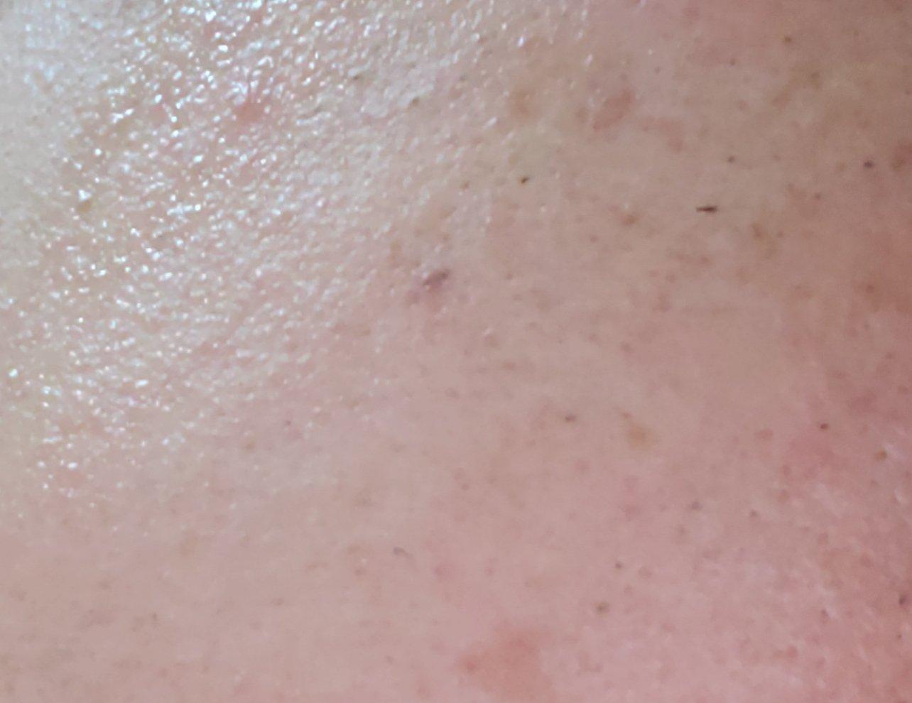 埋没毛の腫れやしこりを予防する目安