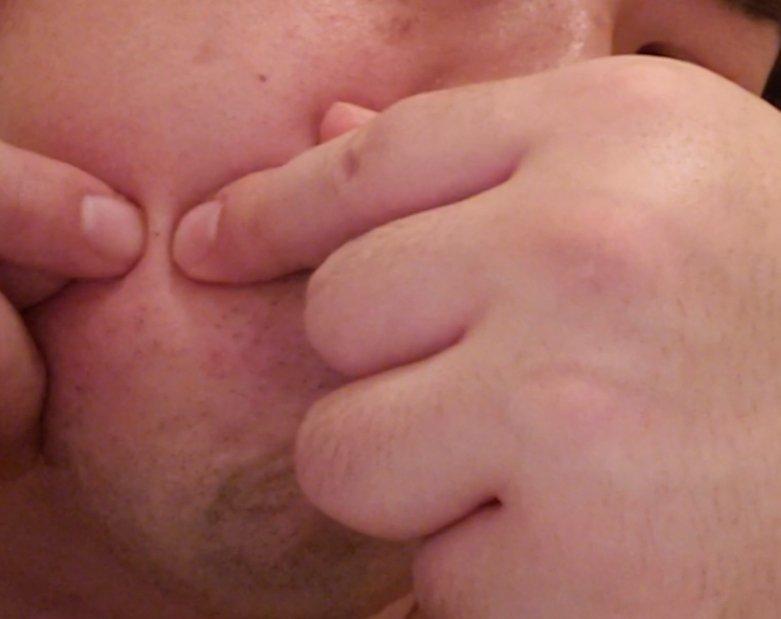 毛穴詰まりを爪で押し出すのは危険