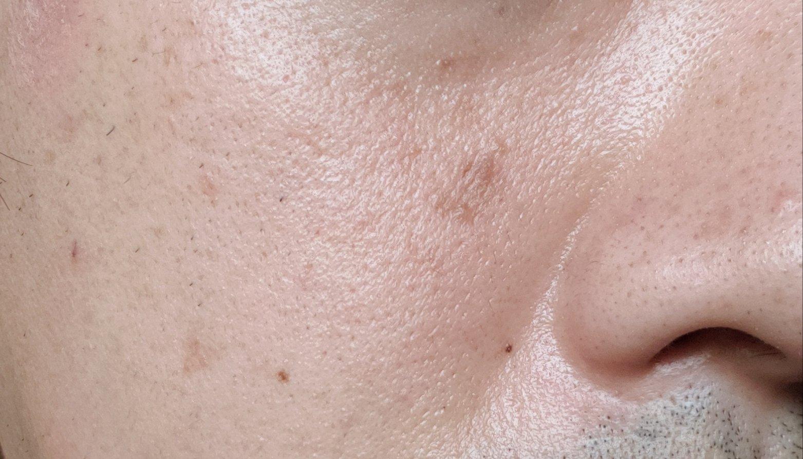 乾燥肌によるシミ