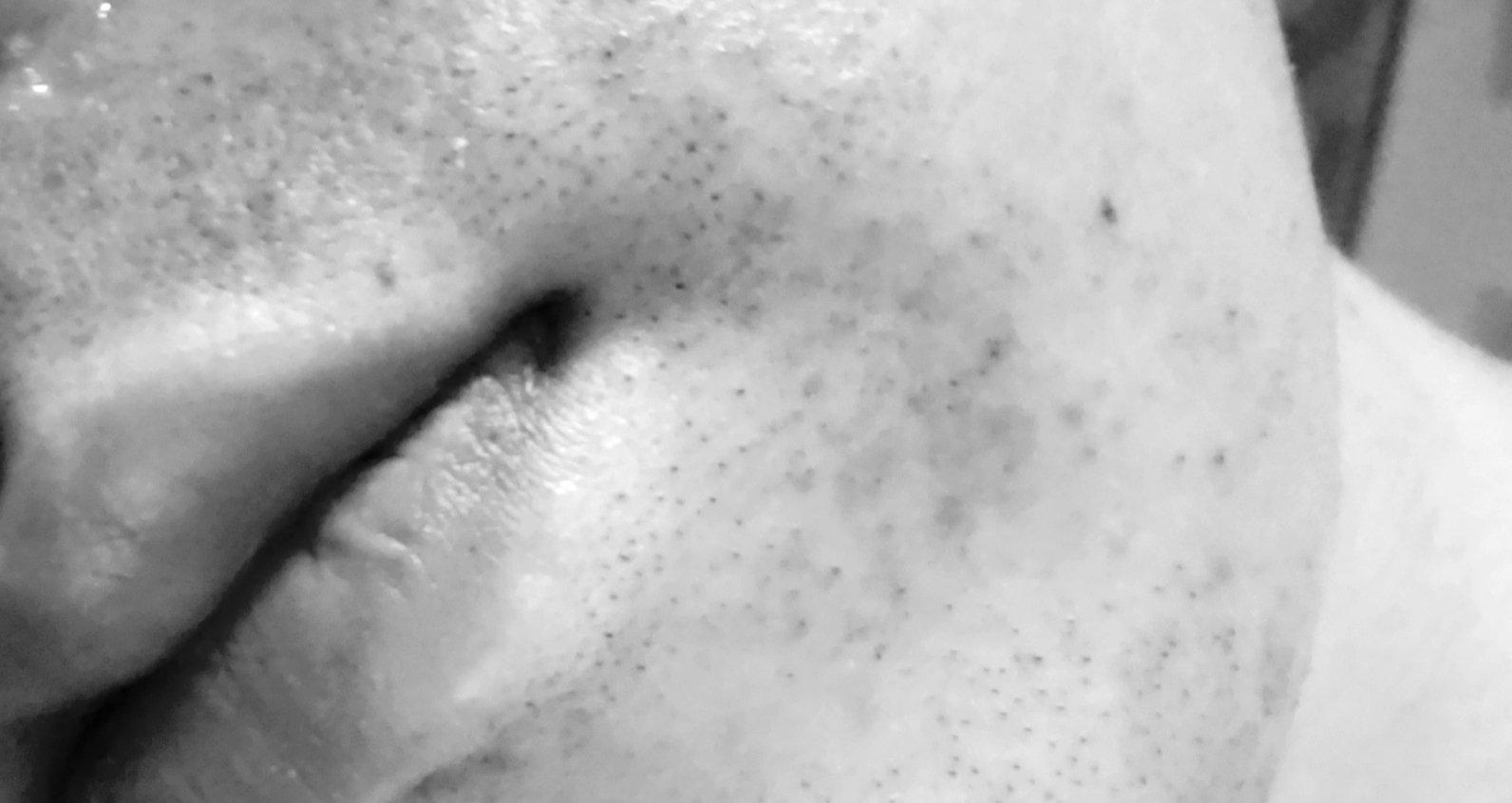 髭を抜くと炎症がひどい