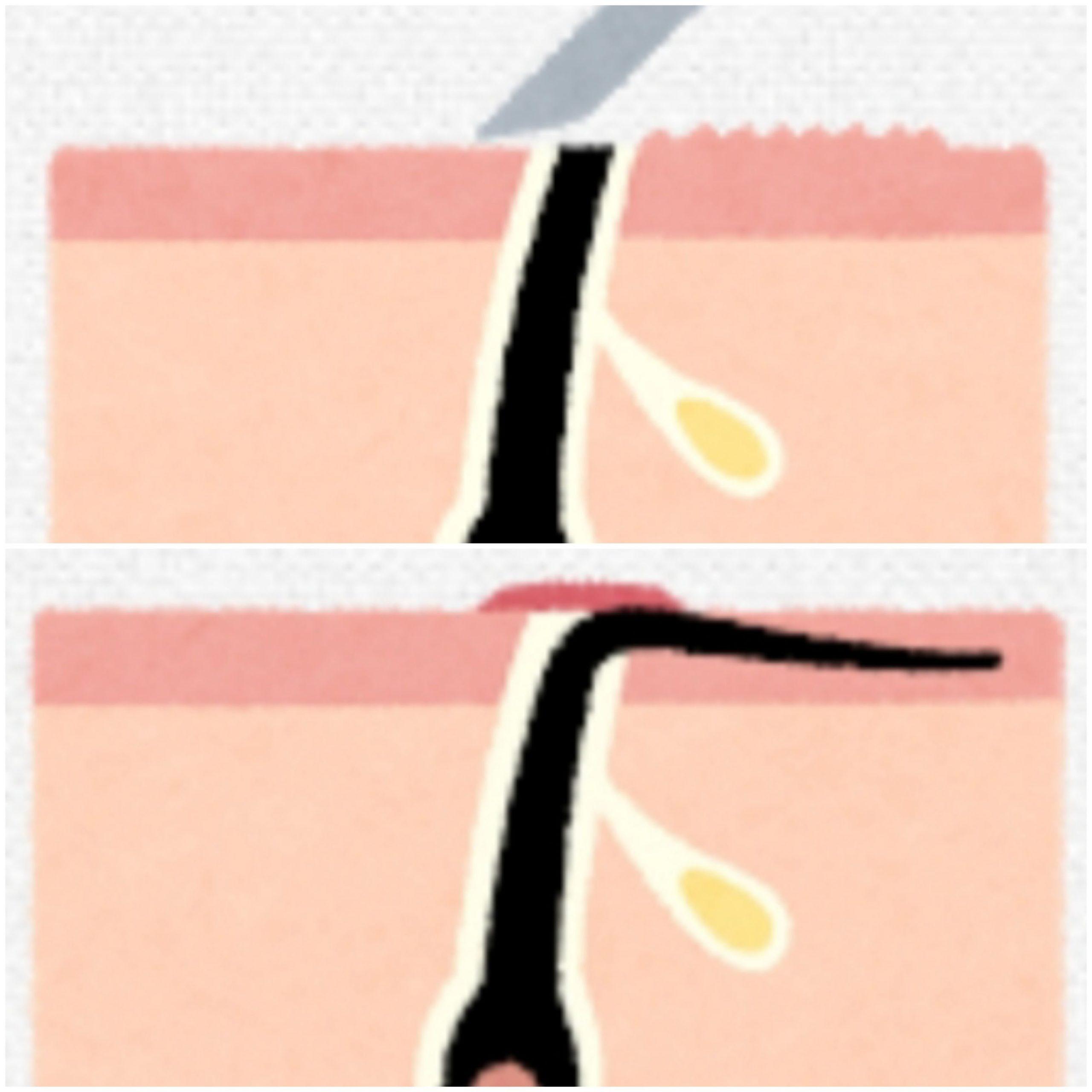 カミソリは皮膚にダメージを与え、埋没毛が生えやすくなる