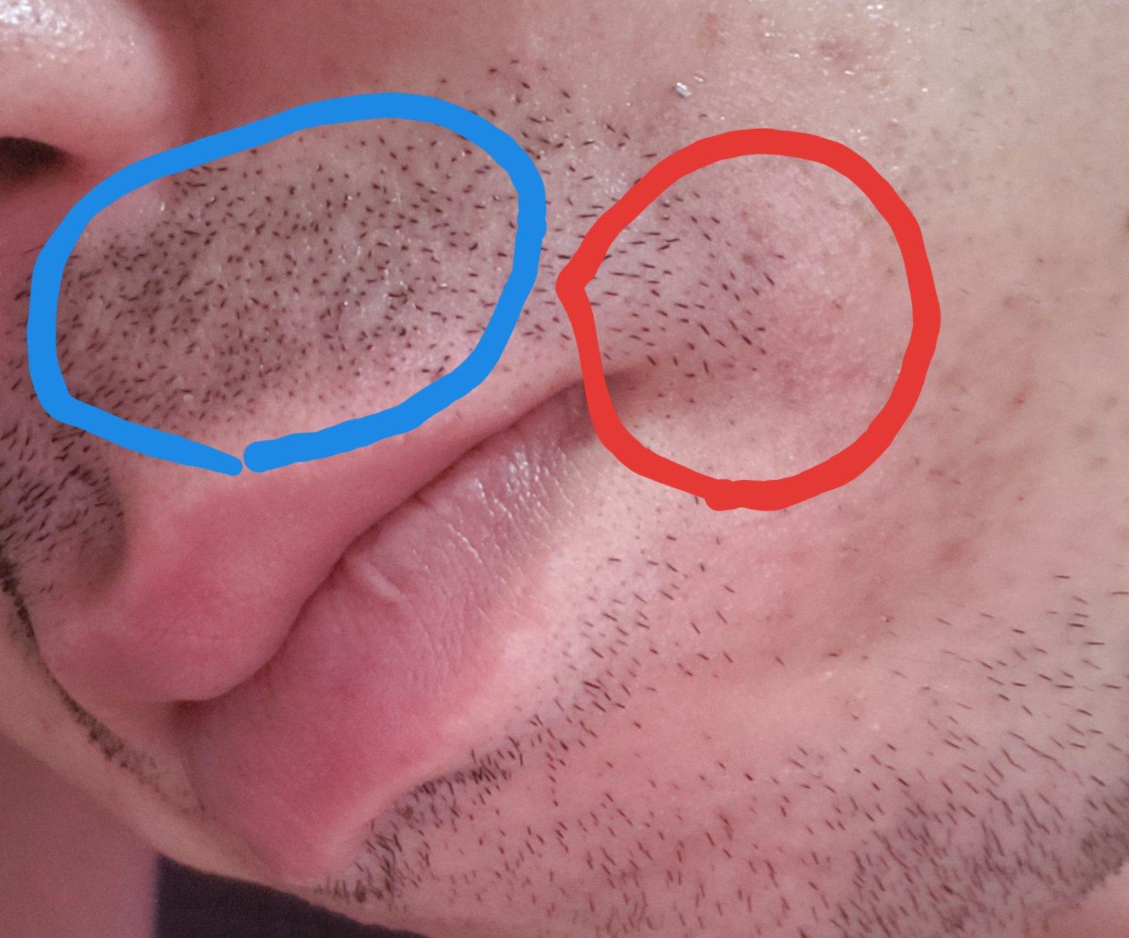 髭を抜くと濃くなるのか薄くなるのか検証した結果