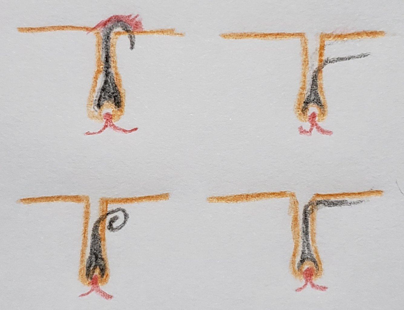 埋没毛の生え方のパターン